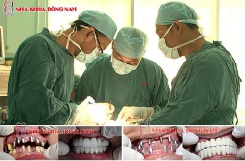 nha khoa trồng răng uy tín sài gòn