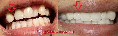 Nha khoa trồngr răng sứ tốt nhất 2