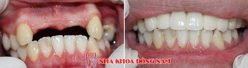 Nha khoa trồngr răng sứ tốt nhất
