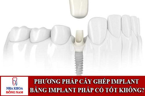 phương pháp cấy ghép implant bằng implant pháp có tốt không