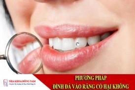 phương pháp đính đá vào răng có hại không
