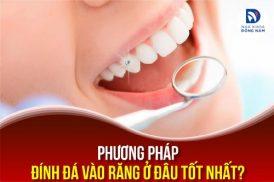 phương pháp đính đá vào răng ở đâu tốt nhất