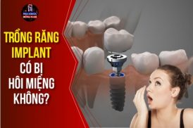 Phương Pháp Trồng Răng Implant Có Bị Hôi Miệng Không?