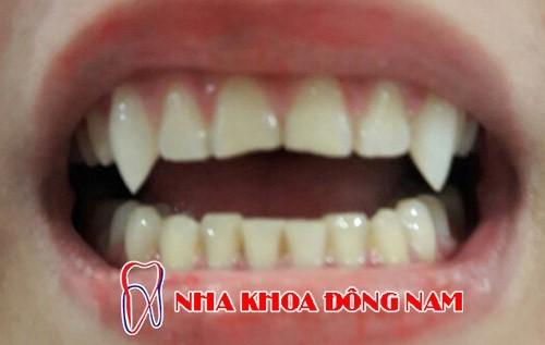 trồng răng nanh có tốt không