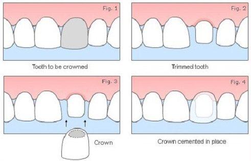 phương pháp trồng răng sứ có bị hôi miệng không 1
