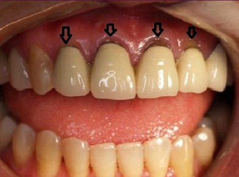 phương pháp trồng răng sứ có bị hôi miệng không 2