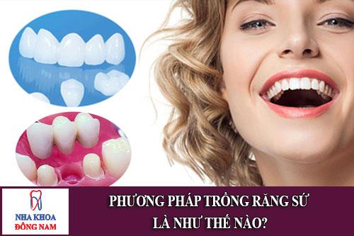 phương pháp trồng răng sứ là như thế nào 1