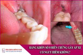 răng khôn số 8 biến chứng gây áp xe có nguy hiểm không