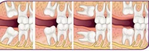 các dạng mọc của răng số 8
