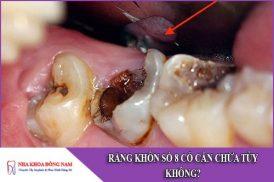 răng khôn số 8 có cần phải chữa tủy không