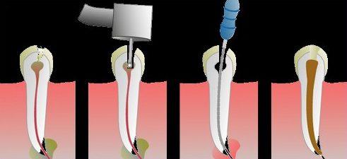 răng khôn số 8 có cần phải chữa tủy không 2