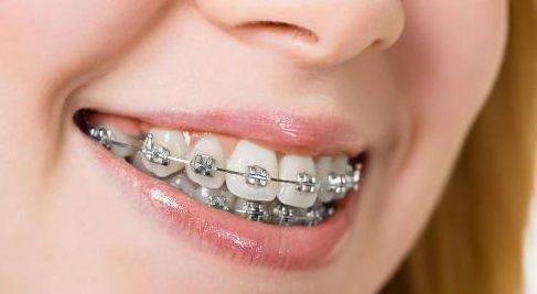 """sau khi niềng răng, răng bị """"chạy"""" là do đâu 1"""