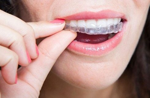 """sau khi niềng răng, răng bị """"chạy"""" là do đâu 3"""