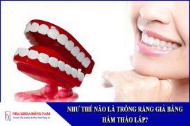 như thế nào là trồng răng giả bằng hàm tháo lắp