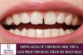 trồng răng sứ cho răng mọc thưa – giải pháp thẩm mỹ hoàn hảo