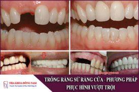 phương pháp trồng răng sứ răng cửa