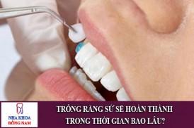 trồng răng sứ sẽ hoàn thành trong thời gian bao lâu