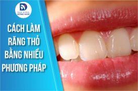 Cách làm răng THỎ bằng nhiều phương pháp