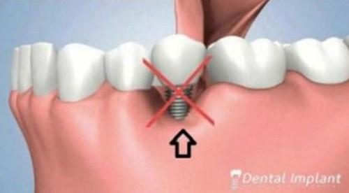 Tiêu xương hàm có cấy ghép implant được không1