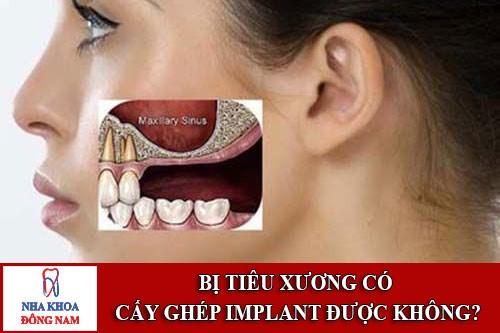 Tiêu xương hàm có cấy ghép implant được không