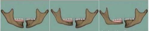 Nên Đeo Răng Giả Hay Cấy Ghép Implant Khi Bị Mất Răng1