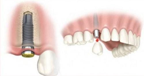 Nên Đeo Răng Giả Hay Cấy Ghép Implant Khi Bị Mất Răng3