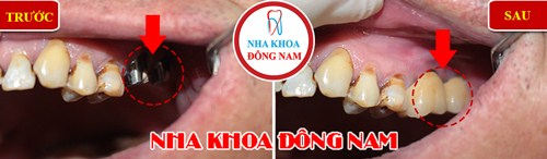 Trồng răng implant có hút thuốc được không-2