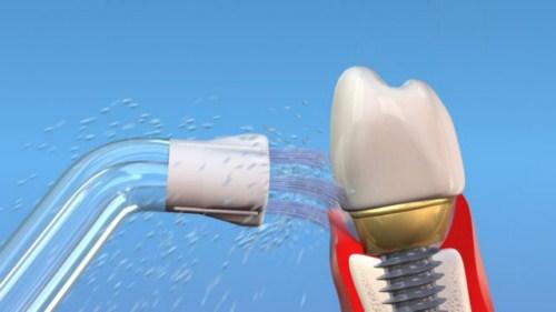 Trồng răng implant có hút thuốc được không-7