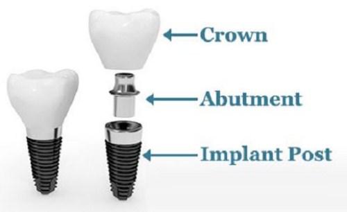 Vì Sao Không Nên Súc Nước Muối Sau Khi Cấy Ghép Implant_1