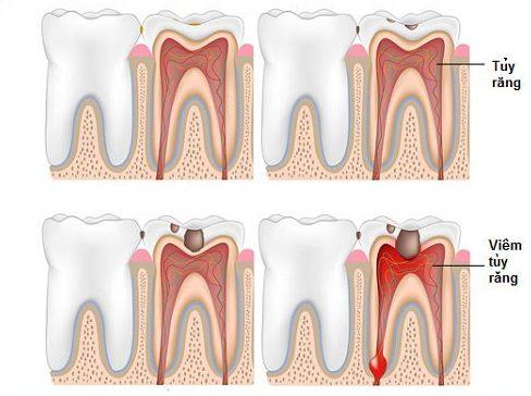 bảng giá chữa tủy răng tại nha khoa đông nam 1