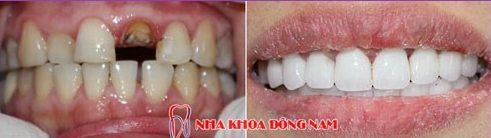 bảng giá chữa tủy răng tại nha khoa đông nam 2