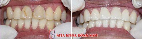 bảng giá chữa tủy răng tại nha khoa đông nam 3