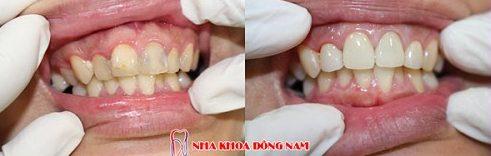 bảng giá chữa tủy răng tại nha khoa đông nam 5