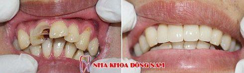 bảng giá chữa tủy răng tại nha khoa đông nam 6