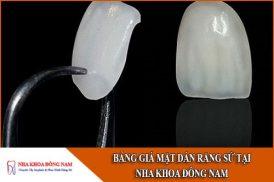bảng giá mặt dán răng sứ tại nha khoa đông nam