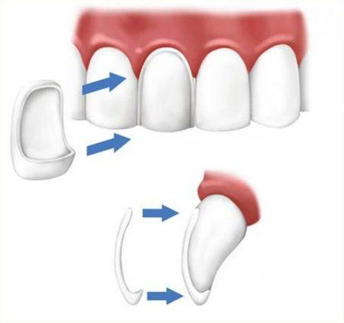bảng giá mặt dán răng sứ tại nha khoa đông nam 1