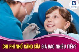 Chi phí nhổ răng sữa giá bao nhiêu tiền
