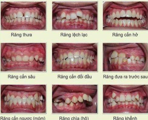 bảng giá niềng răng tại nha khoa đông nam 2