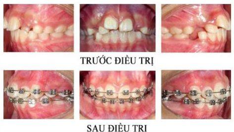 bảng giá niềng răng tại nha khoa đông nam 3
