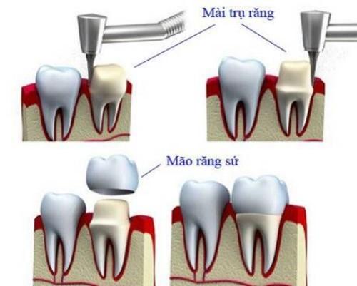 mo phỏng kỹ thuật bọc răng sứ