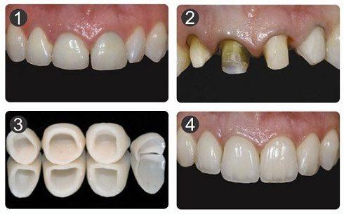bảng giá răng sứ tại nha khoa đông nam 2