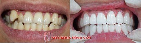 bảng giá răng sứ tại nha khoa đông nam 3