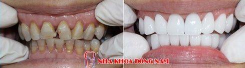 bảng giá răng sứ tại nha khoa đông nam 5