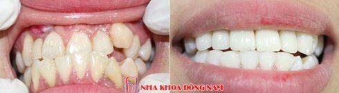 bảng giá răng sứ tại nha khoa đông nam 6