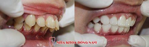 bảng giá răng sứ tại nha khoa đông nam 7