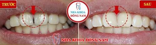 bảng giá trám răng thẩm mỹ tại nha khoa đông nam 4