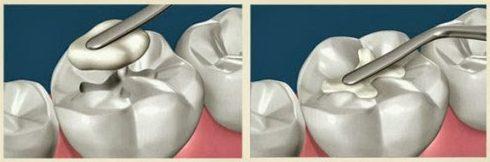 bảng giá trám răng thẩm mỹ tại nha khoa đông nam 1