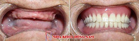 bảng giá trồng răng giả tại nha khoa đông nam 1