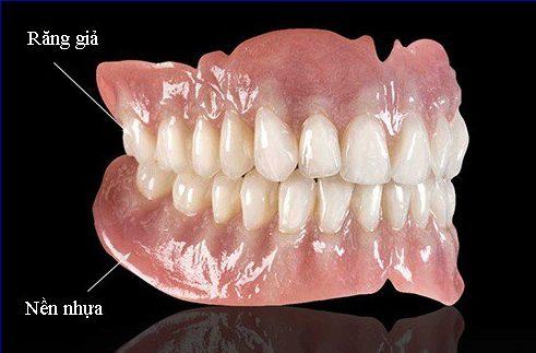 bảng giá răng giả tháo lắp tại nha khoa đông nam 1