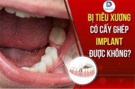 Bị Tiêu Xương Có Cấy Ghép Implant Được Không?